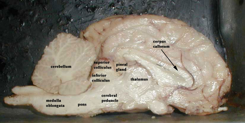 Sagittal Section Of Sheep Brain